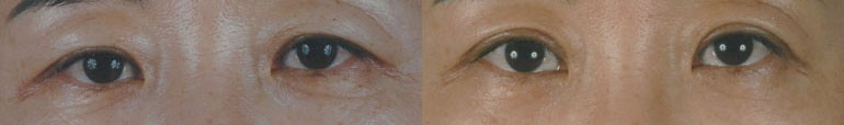 Patient 2 Blepharoplasty Before and After