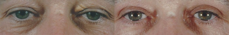 Patient 3 Blepharoplasty Before and After