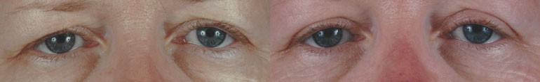 Patient 4 Blepharoplasty Before and After
