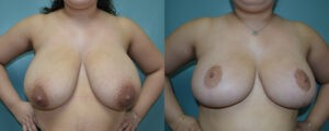 Patient 6a Breast Reduction Before and After