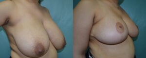 Patient 6b Breast Reduction Before and After