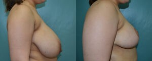 Patient 6c Breast Reduction Before and After