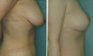 Patient 10a Tummy Tuck Before and After