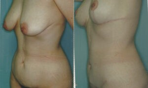 Patient 10b Tummy Tuck Before and After
