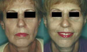 Patient 7a Facelift Before and After
