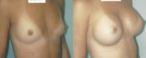 Patient 14a Breast Augmentation Before and After