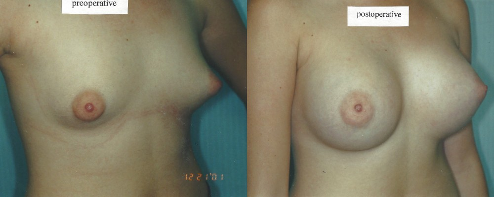 Patient 15 Breast Augmentation Before and After
