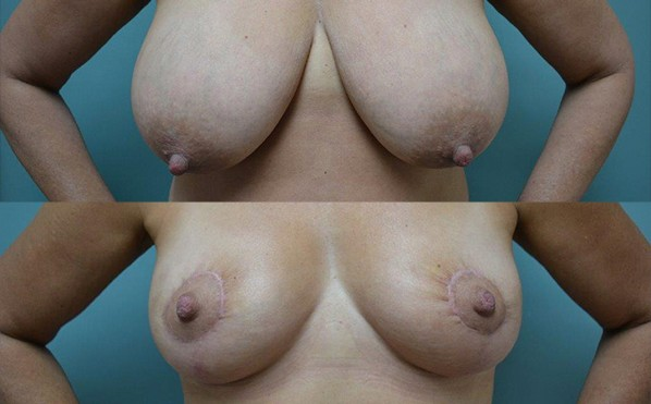 Patient 2 Breast Reduction Before and After