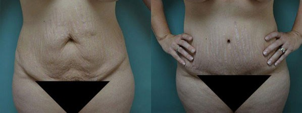 Patient 4 Tummy Tuck Before and After