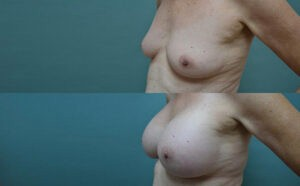 Patient 3c Breast Augmentation Before and After