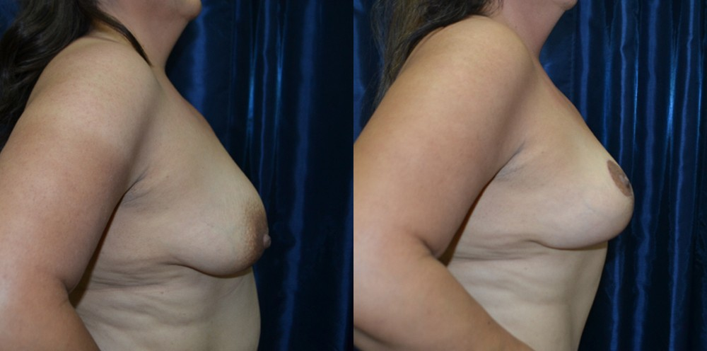 Patient 3a Breast Lift Before and After