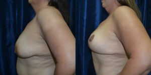 Patient 3e Breast Lift Before and After
