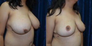 Patient 9c Breast Reduction Before and After
