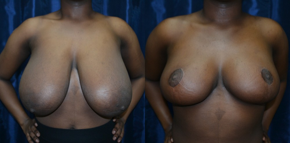Patient 8a Breast Reduction Before and After