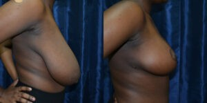 Patient 8b Breast Reduction Before and After