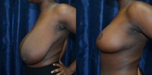 Patient 8d Breast Reduction Before and After