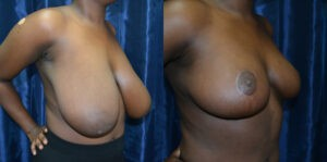 Patient 8e Breast Reduction Before and After