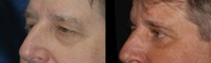 Patient 9b Blepharoplasty Before and After