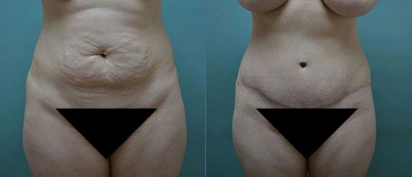 Patient 3 Tummy Tuck Before and After