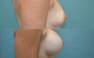 Patient 2d Breast Augmentation Before and After