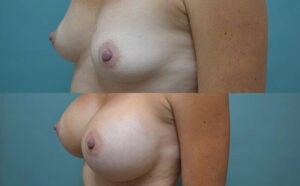 Patient 2e Breast Augmentation Before and After