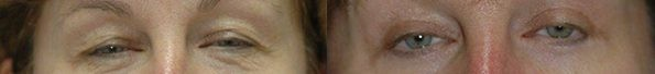 Patient 1a Blepharoplasty Before and After