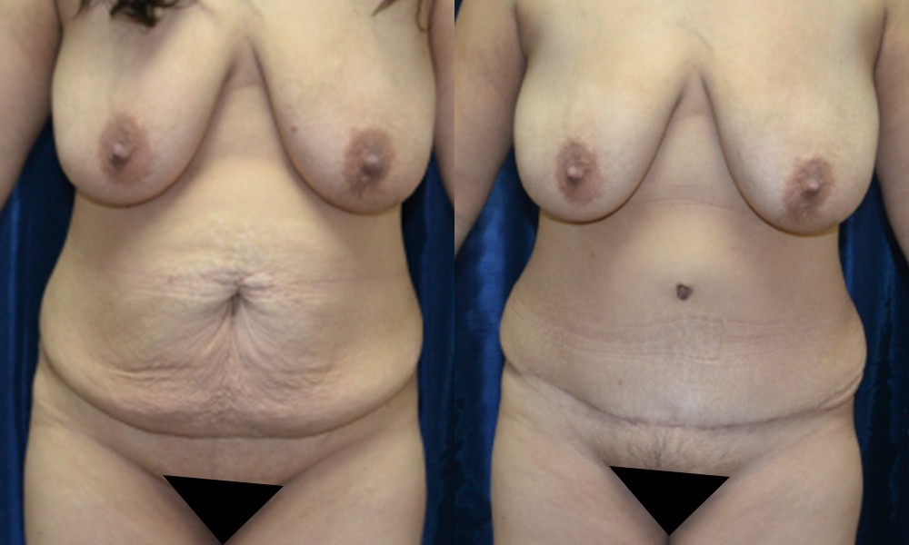 Patient 11a Tummy Tuck Before and After
