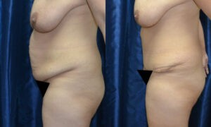Patient 11b Tummy Tuck Before and After