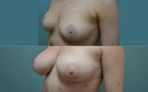 Patient 8d Breast Augmentation Before and After