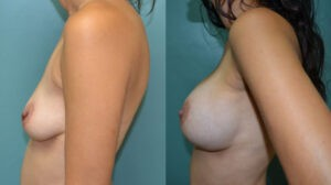 Patient 1b Breast Augmentation Before and After