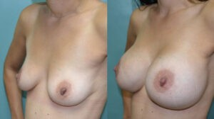 Patient 1c Breast Augmentation Before and After