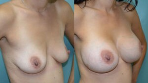 Patient 1d Breast Augmentation Before and After