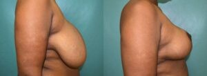 Patient 5d Breast Reduction Before and After