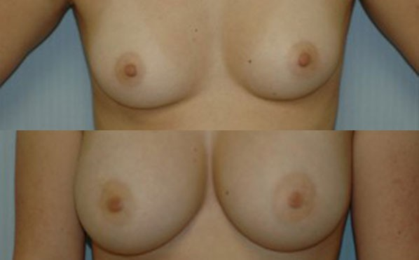 Patient 4 Breast Augmentation Before and After