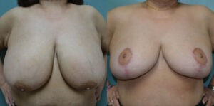 Patient 3c Breast Reduction Before and After