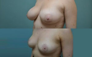 Patient 1e Breast Reduction Before and After