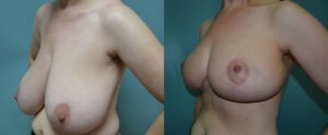 Patient 4d Breast Reduction Before and After