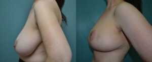 Patient 4e Breast Reduction Before and After