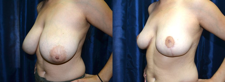 Patient 7a Breast Reduction Before and After