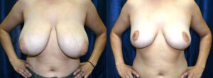 Patient 7d Breast Reduction Before and After
