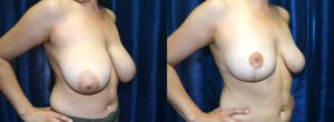 Patient 7b Breast Reduction Before and After