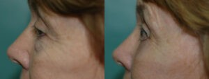 Patient 8d Blepharoplasty Before and After