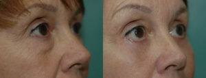 Patient 8c Blepharoplasty Before and After