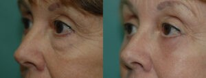 Patient 8b Blepharoplasty Before and After