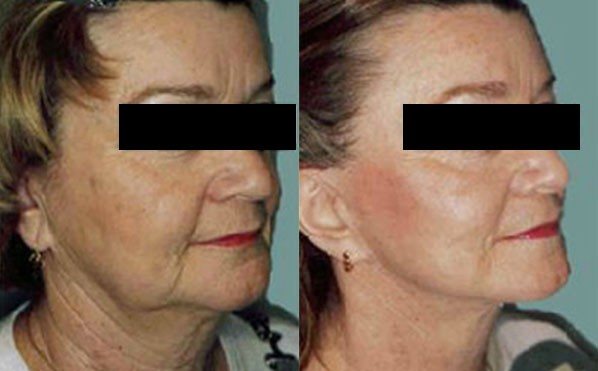 Patient 5 Facelift Before and After