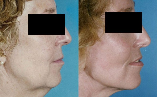 Patient 3 Facelift Before and After