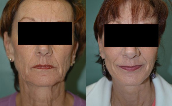 Patient 2 Facelift Before and After