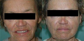 Patient 3a Micro Fat Grafting Before and After