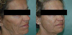 Patient 3e Micro Fat Grafting Before and After