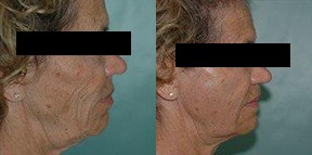 Patient 3d Micro Fat Grafting Before and After